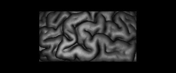cortex_600by250